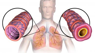 Astma to poważna choroba.