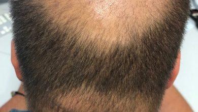 Twój facet trafi włosy. Jak mu pomóc? (fot.TVS)
