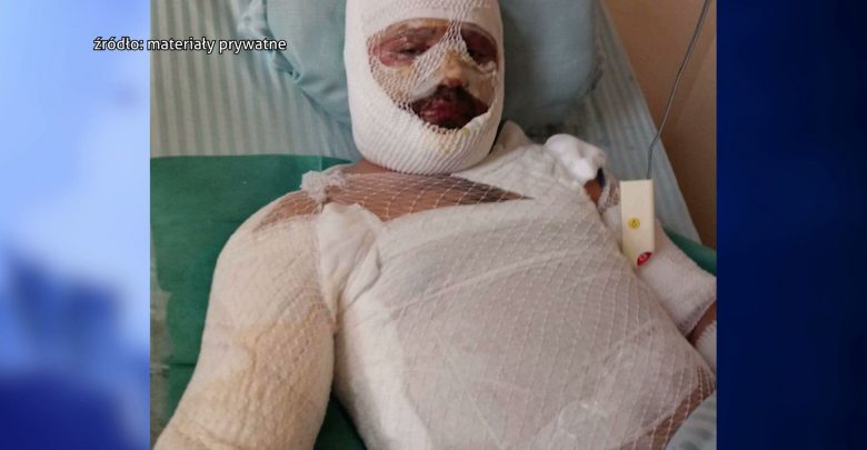 O mało nie zginął, teraz walczy o życie 3-letniego synka! Poruszająca historia rodziny spod Bielska-Białej