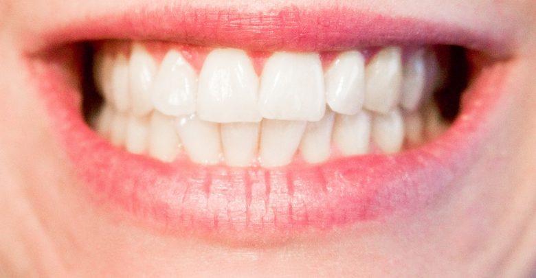 9 rzeczy, które musisz wiedzieć, zanim zdecydujesz się na licówki na zęby [ILE KOSZTUJĄ LICÓWKI?]