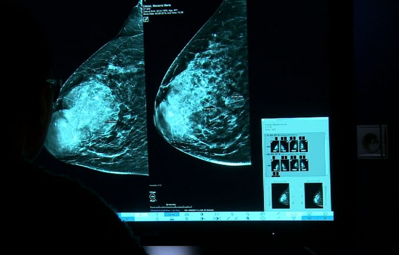 Kierunek Zdrowie: Nowotwór piersi - jak leczyć?