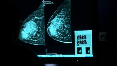 Kierunek Zdrowie: Rak piersi, choroba do leczenia