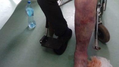 Sosnowiec: Mężczyzna zmarł w męczarniach na izbie przyjęć! Z krwawiącą nogą czekał na pomoc prawie 9 godzin! (fot.archiwum prywatne)