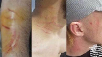 Piłkarz ranił żyletką rywali (fot. twitter Filip Cieśliński)