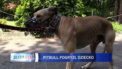 Jaworzno: 11-latek pogryziony przez pitbulla. Pies uciekł właścicielom i rzucił się na dziecko [WIDEO] (fot.mat.TVS)