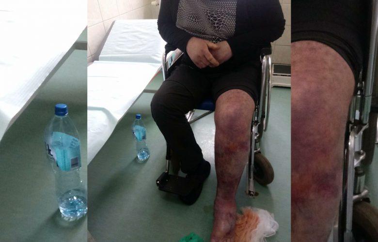 Śląskie: Szpitale płacą za śmierć pacjentów na SORach. Rzecznik Praw Pacjenta na placówkach nie zostawia suchej nitki!