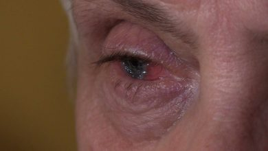 Medyczny cud w Sosnowcu! Lekarze przywrócili wzrok kobiecie po prawie 30 latach [WIDEO]