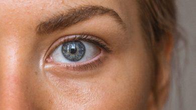 Przebarwienia skóry: jak z nimi walczyć? (fot. unsplash.com)