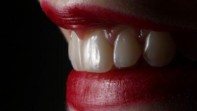 Jak wybielić zęby w domu? (fot. unsplash.com)