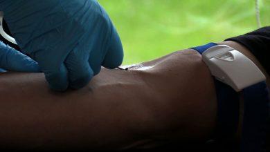 Lekarze ze Szpitala Specjalistycznego nr 1 w Bytomiu wykorzystali osocze jednego z ozdrowieńców i wyleczyli pacjenta z koronawirusa