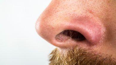 Nie masz węchu i smaku? Koniecznie zrób test na koronawirusa!