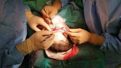SZOK! Maszyna ją oskalpowała! Chirurdzy z Gliwic ją uratowali. Fot. Narodowy Instytut Onkologii w Gliwicach
