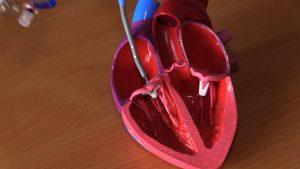 Śląscy kardiolodzy dokonali cudu! Takiej operacji serca jeszcze nikt nie przeprowadził!